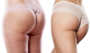cellilit przed i po