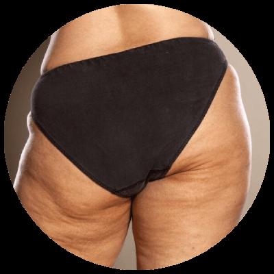 Cellulit tluszczowy na udach.