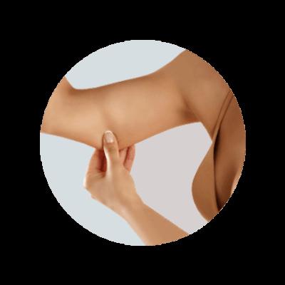 Cellulit na rękach